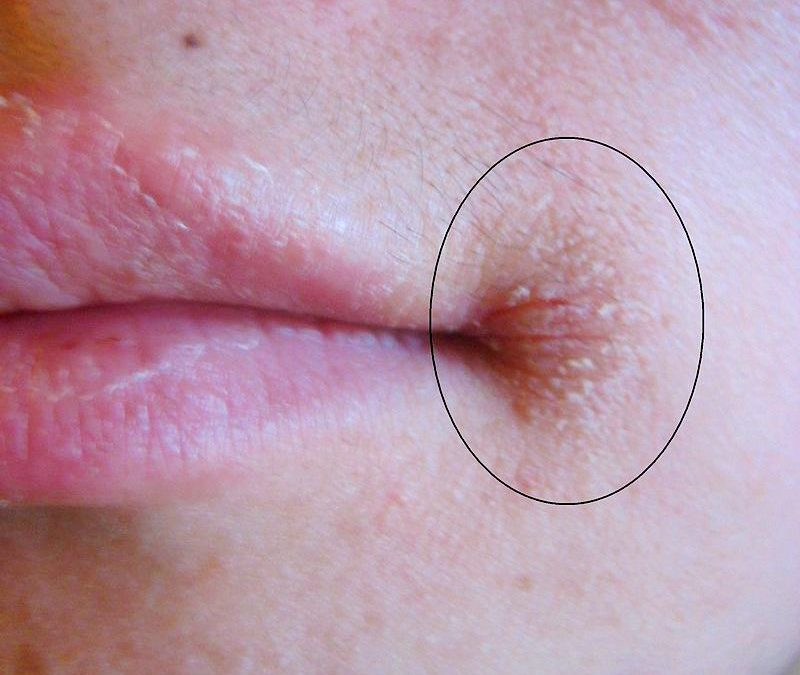 Angular cheilitis (AC), is inflammation of one or both corners of the mouth