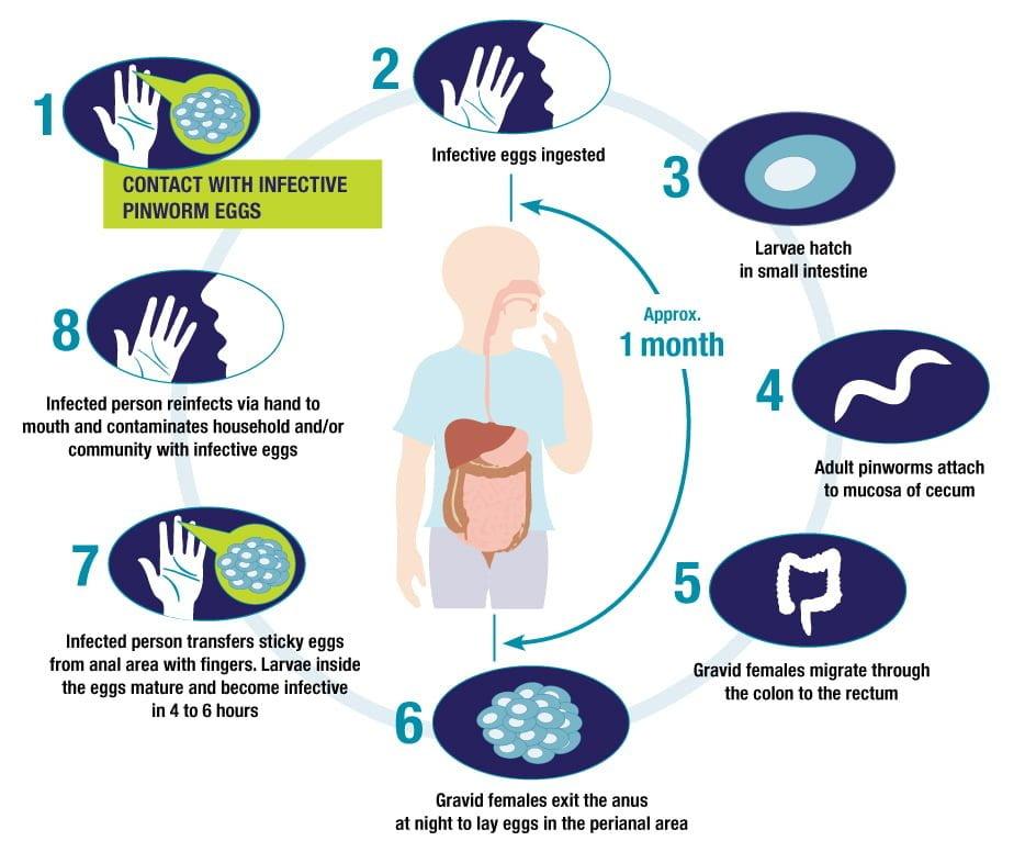 által termelt pinwormos betegségek